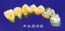 贵金shu烤瓷